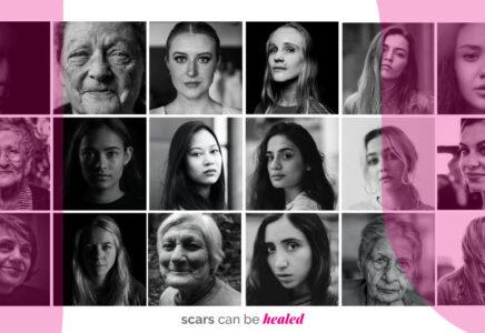 «Dalle Cicatrici si può Guarire»: Novavision e Novabee per la giornata contro la violenza sulle donne