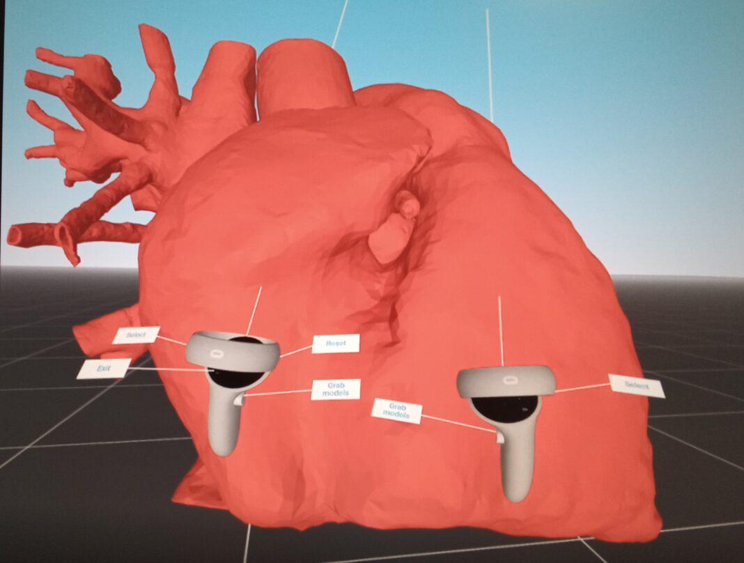 Padova, la cardiochirurgia pediatrica applica la realtà virtuale nelle cardiopatie congenite