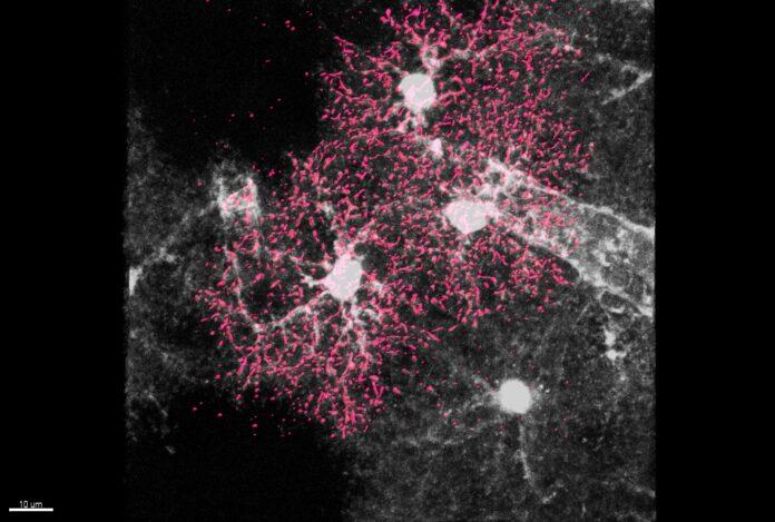 la crescita e la maturazione delle cellule stellate subito dopo la nascita sia fondamentale per la sopravvivenza dei neuroni